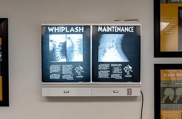 Chiropractic East Columbus OH X-Rays
